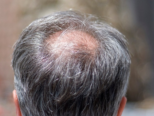 hide a bald spot on crown